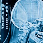 Brain Injury Raises Risk of Criminal Activity, Arrest, Prison Time